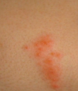 Shingles Herpes Zoster - Lone Parenting