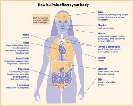 Diagram showing Bulimia Nervosa and the affect on the body