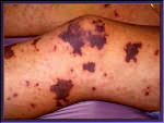 The Meningitis Septicaemia Rash